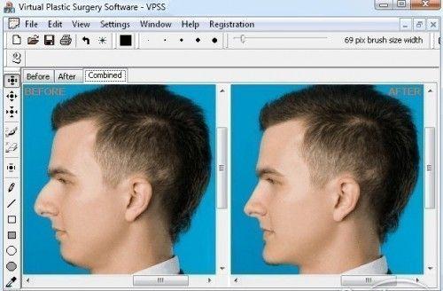Програма віртуальної пластичної хірургії.